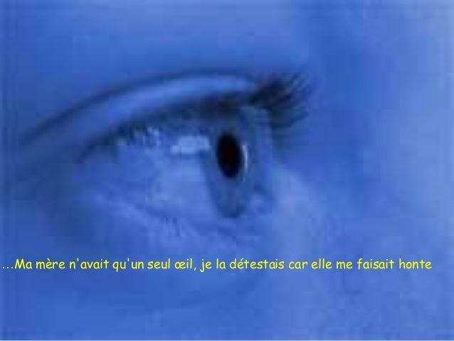 …Ma mère n'avait qu'un seul œil, je la détestais car elle me faisait honte