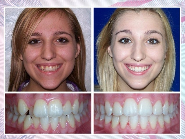 Teeth Whitening Dentist Cost India Teethwalls