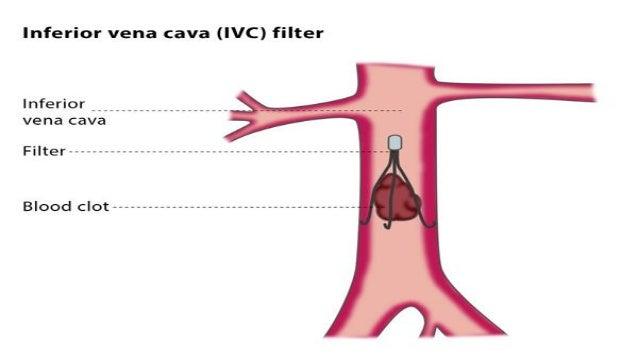 IVC Filter