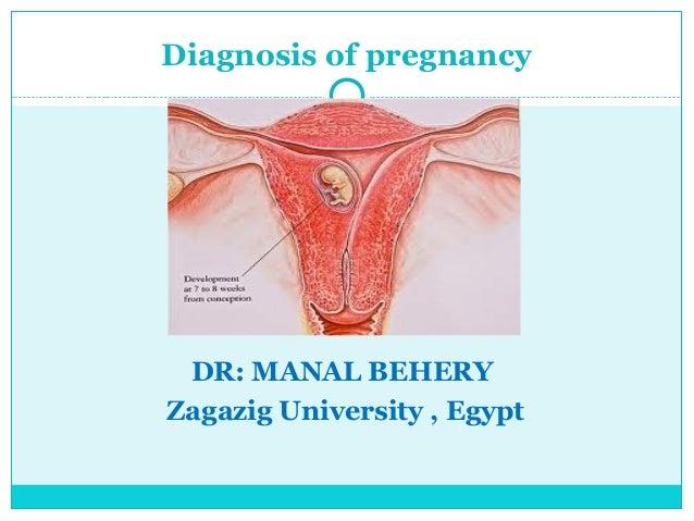 Diagnosis of pregnancy DR: MANAL BEHERYZagazig University , Egypt