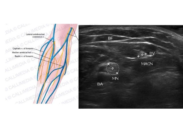 Updated Elbow Musculoskeletal US Examination