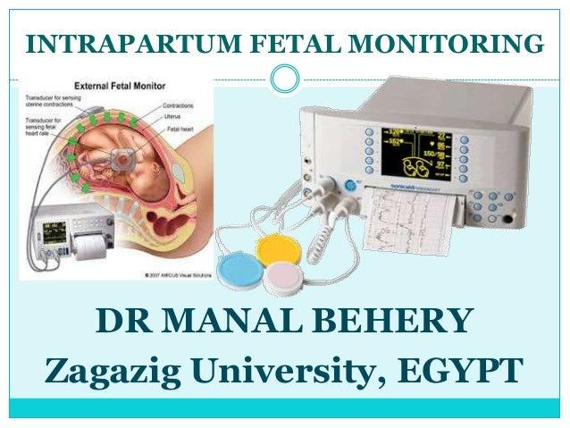 INTRAPARTUM FETAL MONITORING   DR MANAL BEHERY Zagazig University, EGYPT