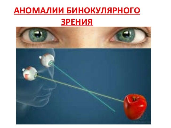 аномалии бинокулярного зрения. Upgraded