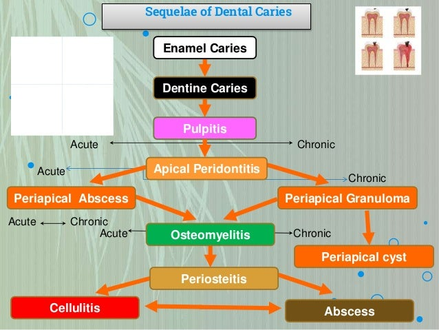 Sequelae of dental caries Infratemporal Space