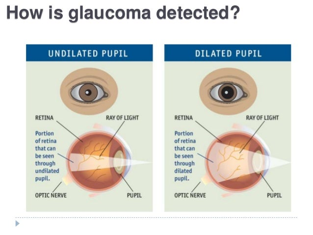 glaucoma, Skeleton
