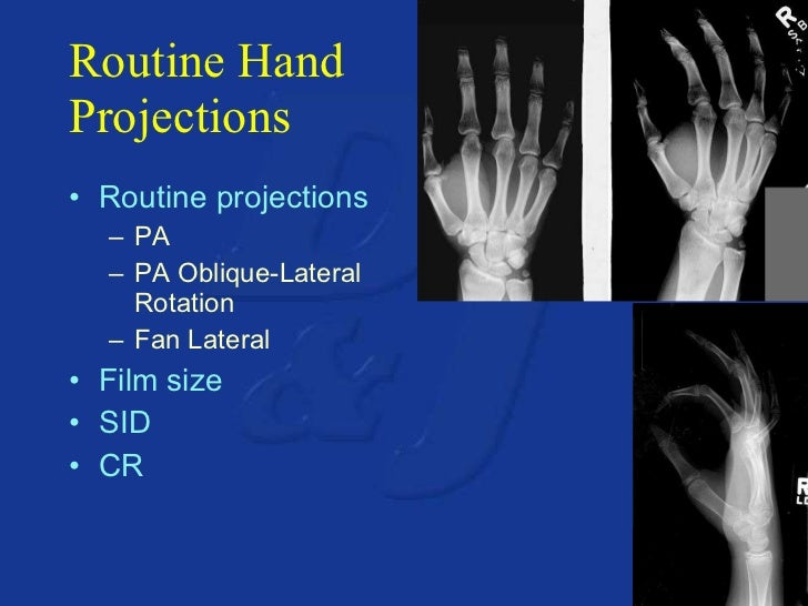 Upper Extremity Anatomy Positioning