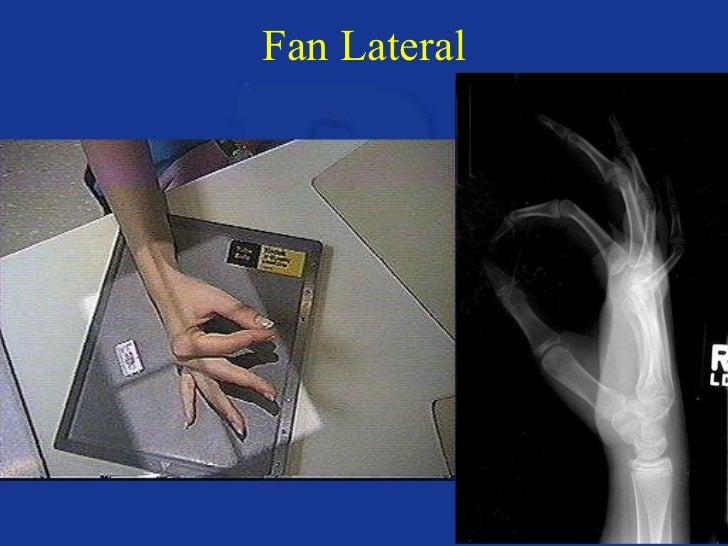 Upper extremity anatomy & positioning