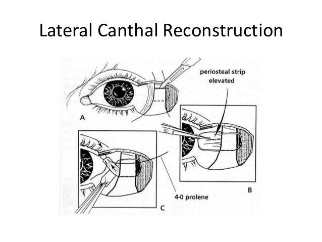 Upper eyelid reconstruction
