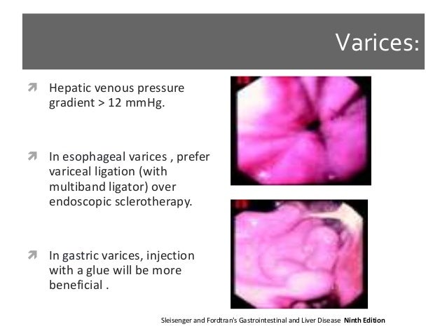 Approach to management of upper gastrointestinal gi bleeding 22 fandeluxe Image collections