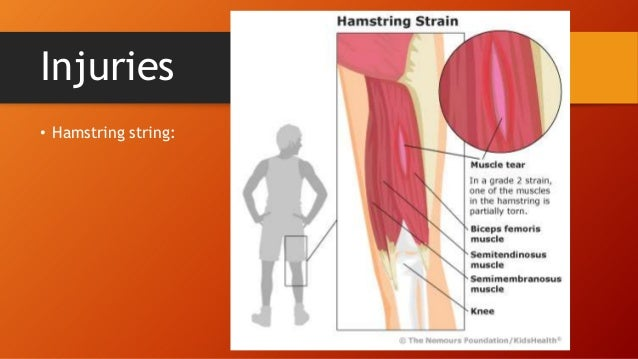 Upper leg muscles and thorax injuries hamstring string ccuart Choice Image