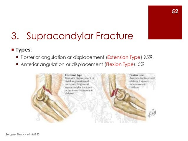 Fractures and Dislocations of Upper Limb