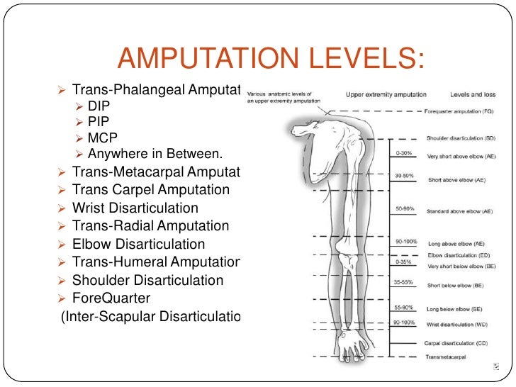 Upper limb functional prosthesis
