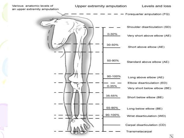 Upper limb prosthesis (pmr)