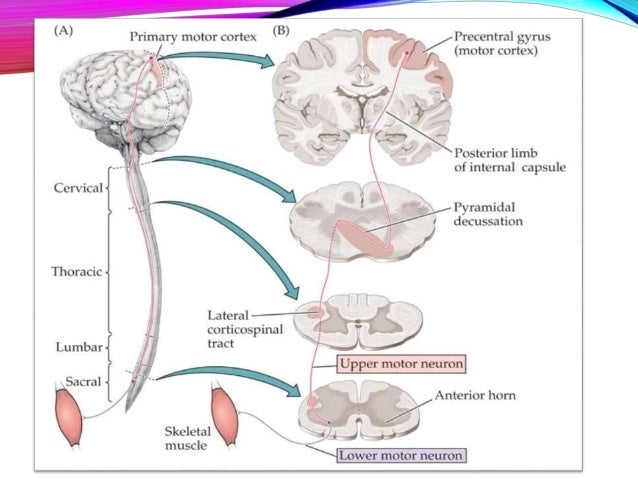 upper and lower motor neurons Medical definition of lower motor neuron the loss of lower motor neurons leads to weakness, twitching of muscle (fasciculation), and loss of muscle mass.