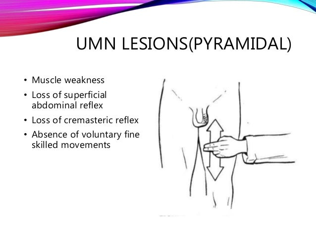 Upper & lower motor neuron lesions