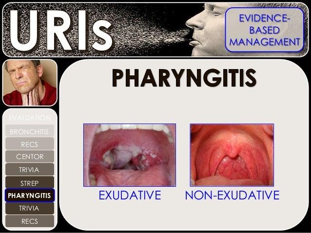 Image Gallery exudative pharyngitis