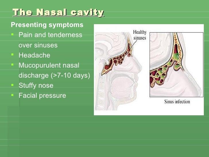 The Nasal cavity <ul><li>Presenting symptoms </li></ul><ul><li>Pain and tenderness  </li></ul><ul><li>over sinuses  </li><...
