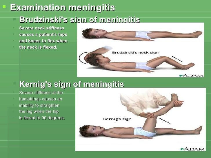 <ul><li>Examination meningitis </li></ul><ul><ul><li>Brudzinski's sign of meningitis  </li></ul></ul><ul><ul><li>Severe ne...