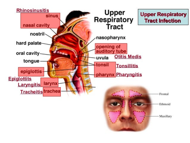 7 upper respiratory tract infections, Human Body