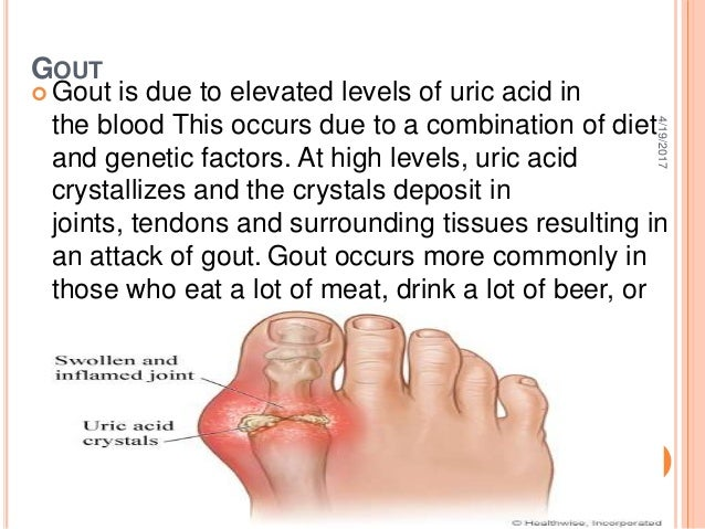 what diet should be taken to reduce uric acid foods to decrease serum uric acid best way to cure gout naturally