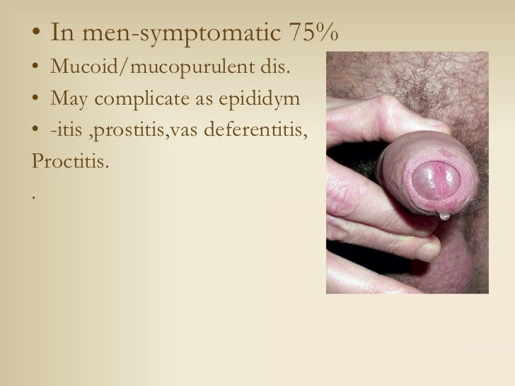 Urethritis seminar