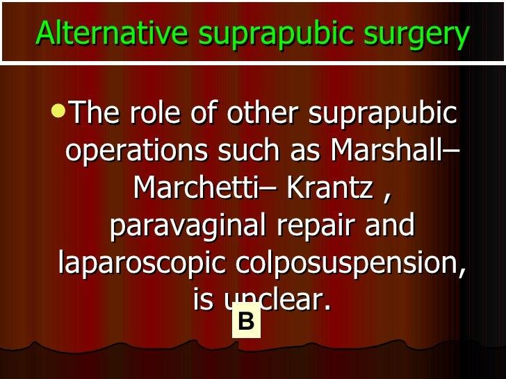 Alternative suprapubic surgery <ul><li>The role of other suprapubic operations such as Marshall–Marchetti– Krantz , parava...