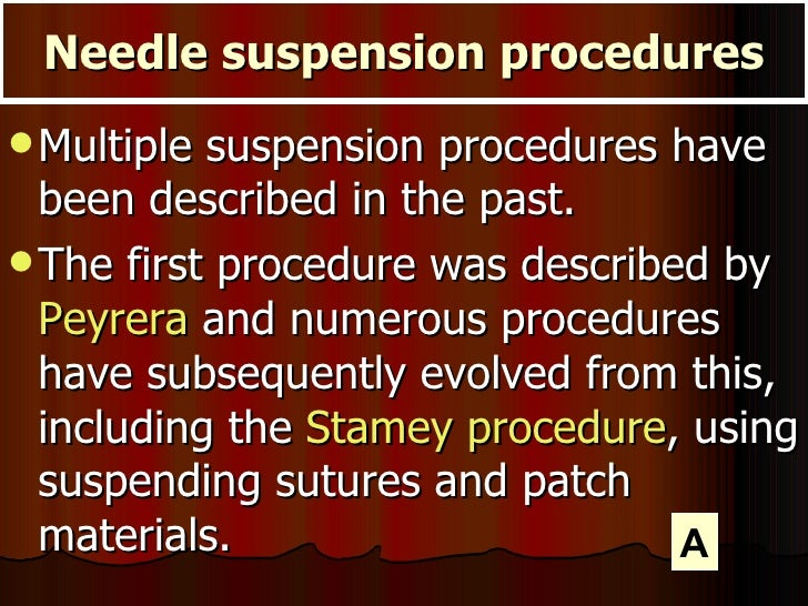 <ul><li>Multiple suspension procedures have been described in the past. </li></ul><ul><li>The first procedure was describe...