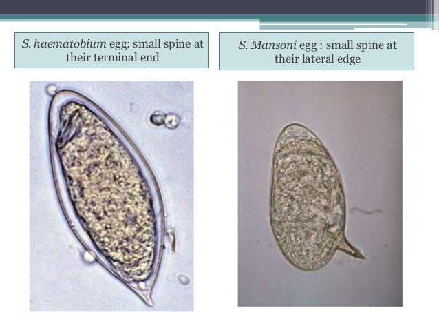 literature review on schistosoma haematobium