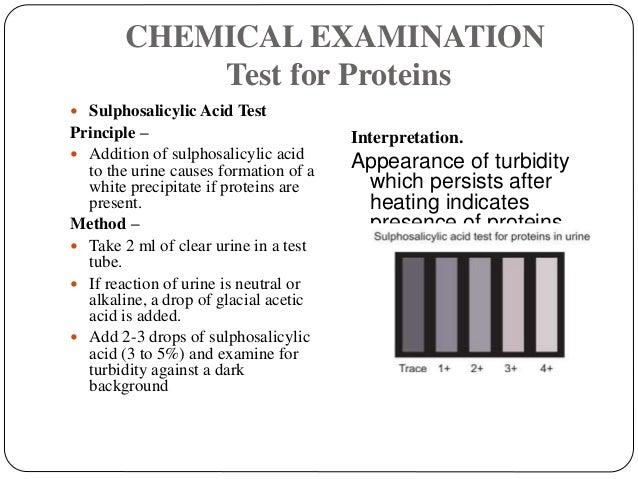 CHEMICAL EXAMINATION Test for Proteins  Sulphosalicylic Acid Test Principle –  Addition of sulphosalicylic acid to the u...