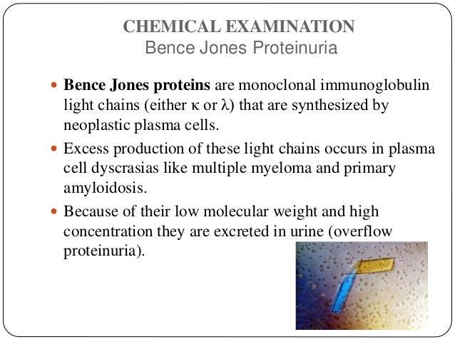 CHEMICAL EXAMINATION Bence Jones Proteinuria  Bence Jones proteins are monoclonal immunoglobulin light chains (either κ o...
