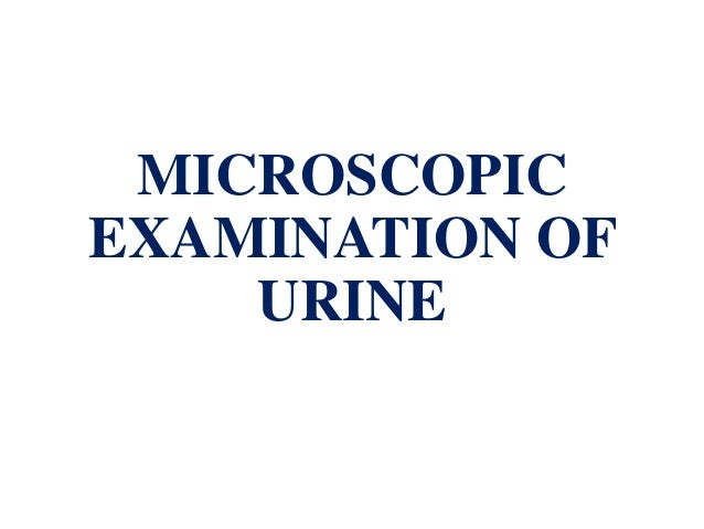 microscopic examination of urine and other special tests Slide 2