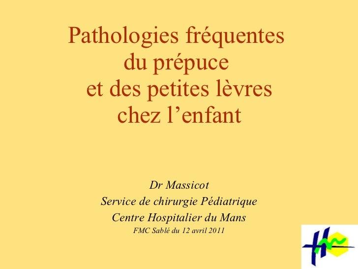 Pathologies fréquentes  du prépuce  et des petites lèvres chez l'enfant Dr Massicot Service de chirurgie Pédiatrique Centr...
