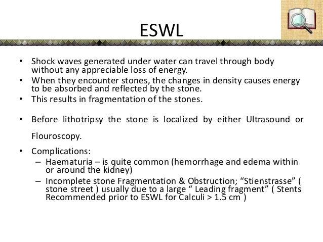 Urolithiasis Kidney Stones