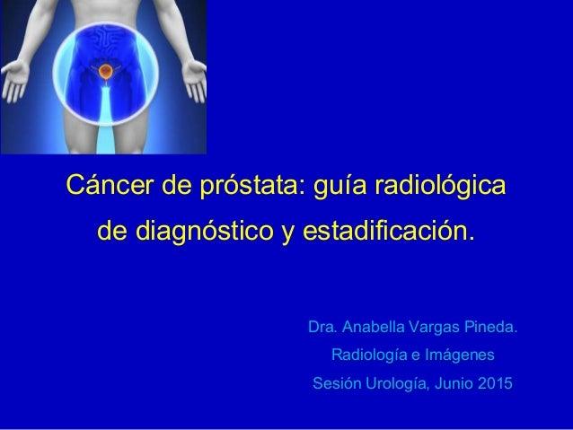 Cáncer de próstata: guía radiológica de diagnóstico y estadificación. Dra. Anabella Vargas Pineda. Radiología e Imágenes S...