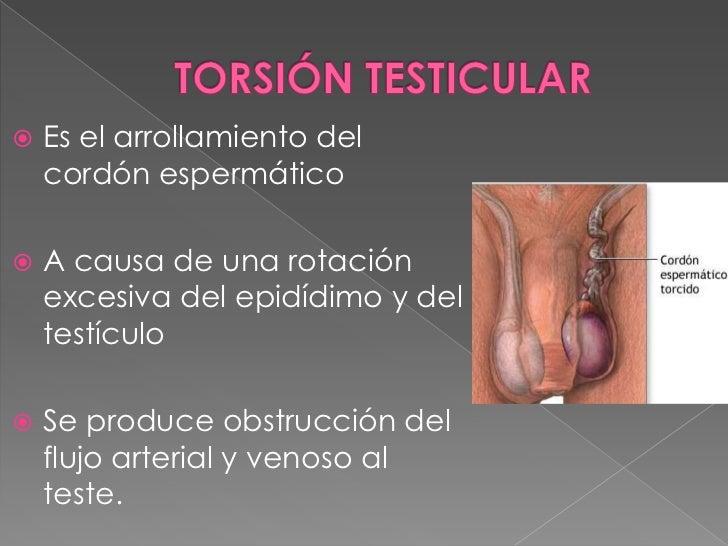  Inicio súbito y severo de dolor testicular. Nausea y vómito. Exploración física:   › Hemiescroto enrojecido y edematos...