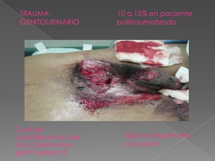    Etiología    › Trauma externo       Cerrado         Desaceleración brusca que compromete la unión          ureteropi...