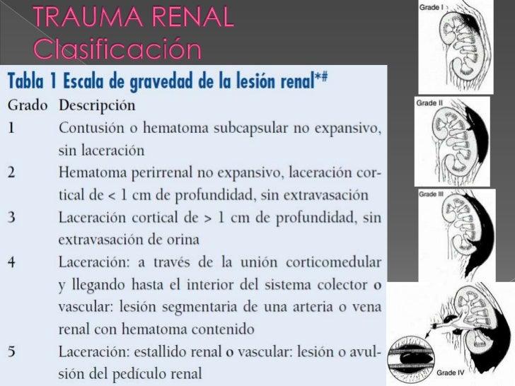    Diagnóstico    › Pielograma endovenoso    › CT abdomino-pélvico    › Pielograma retrógrado         La extravasación de...
