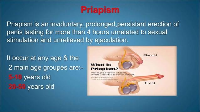 Causes of priapism • Primary (Idiopathic) : 30%- 50% • Secondary: • Drugs • Trauma • Prolonged sexual activity • Neurologi...