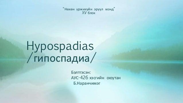 """""""Нөхөн үржихүйн эрүүл мэнд""""  XV блок  Hypospadias  /гипоспадиа/  Бэлтгэсэн:  АУС-426 хэсгийн оюутан  Б.Наранчимэг"""