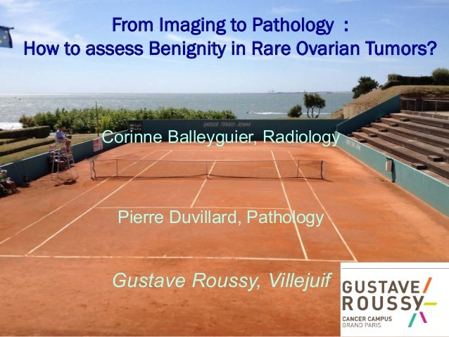 From Imaging to Pathology : How to assess Benignity in Rare Ovarian Tumors?  Corinne Balleyguier, Radiology  Pierre Duvill...