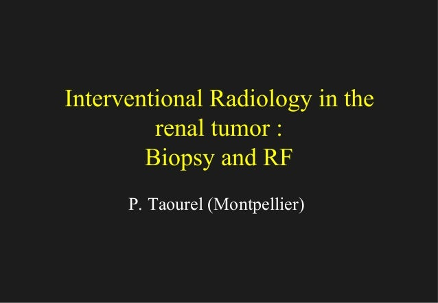 Interventional Radiology in the renal tumor : Biopsy and RF P. Taourel (Montpellier)