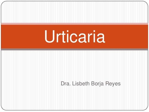 Urticaria  Dra. Lisbeth Borja Reyes