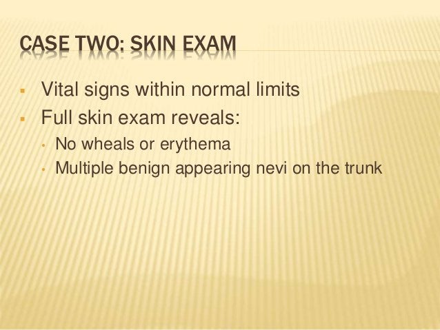 CASE TWO: SKIN EXAM  Vital signs within normal limits  Full skin exam reveals: • No wheals or erythema • Multiple benign...