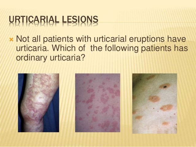 URTICARIAL LESIONS  Not all patients with urticarial eruptions have urticaria. Which of the following patients has ordina...