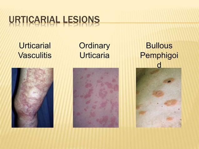 URTICARIAL LESIONS Urticarial Vasculitis Ordinary Urticaria Bullous Pemphigoi d