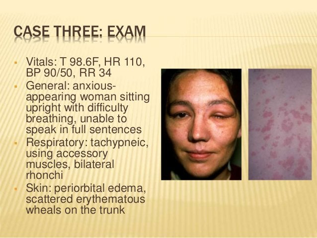 CASE THREE: EXAM  Vitals: T 98.6F, HR 110, BP 90/50, RR 34  General: anxious- appearing woman sitting upright with diffi...