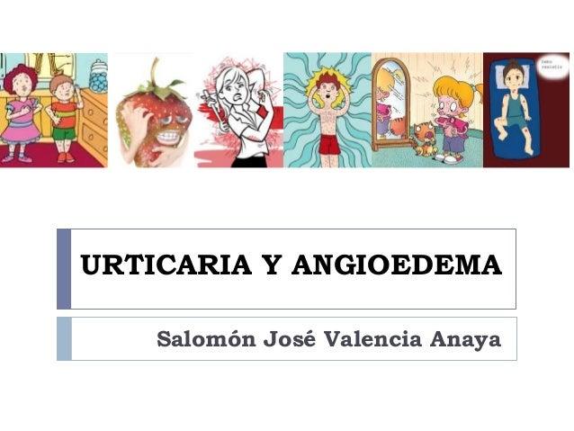URTICARIA Y ANGIOEDEMA Salomón José Valencia Anaya