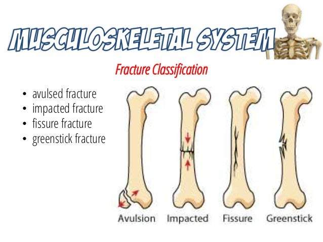 Musculoskeletal System Trau ~ Fracture Bois Vert Poignet