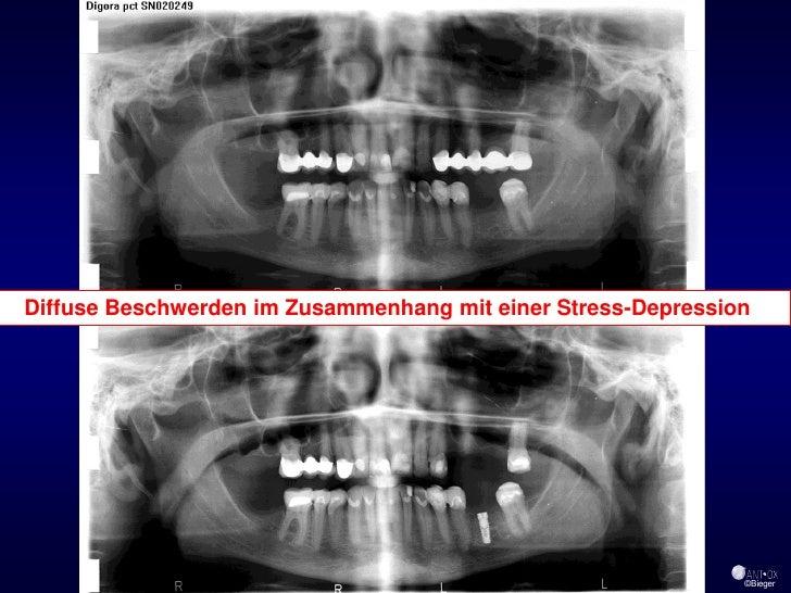 Diffuse Beschwerden im Zusammenhang mit einer Stress-Depression                                                    39     ...