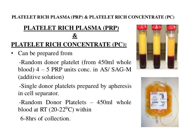 platelet rich plasma platelet concentrate prp pc analysis Analysis of platelet-rich plasma is defined as a platelet-rich concentrate with higher safe, i platelet-rich plasma versus platelet-poor plasma in.